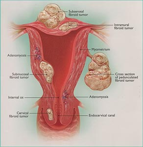 vaginal walls on Growths