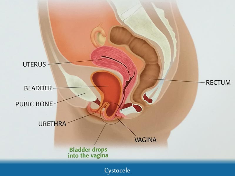 Pain between vagina and butt